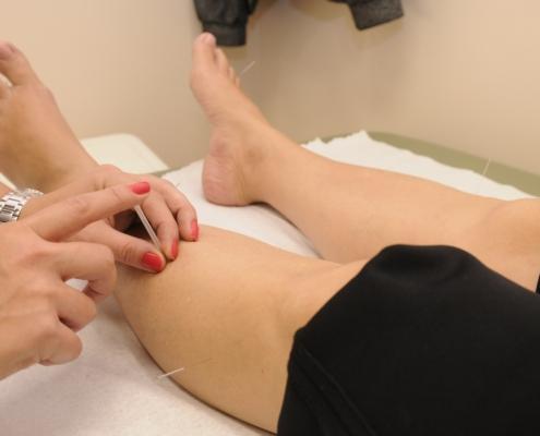 Terapia grupal de acupuntura