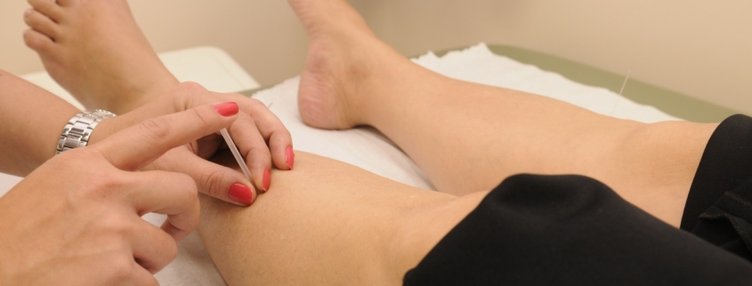 Group acupuncture therapy